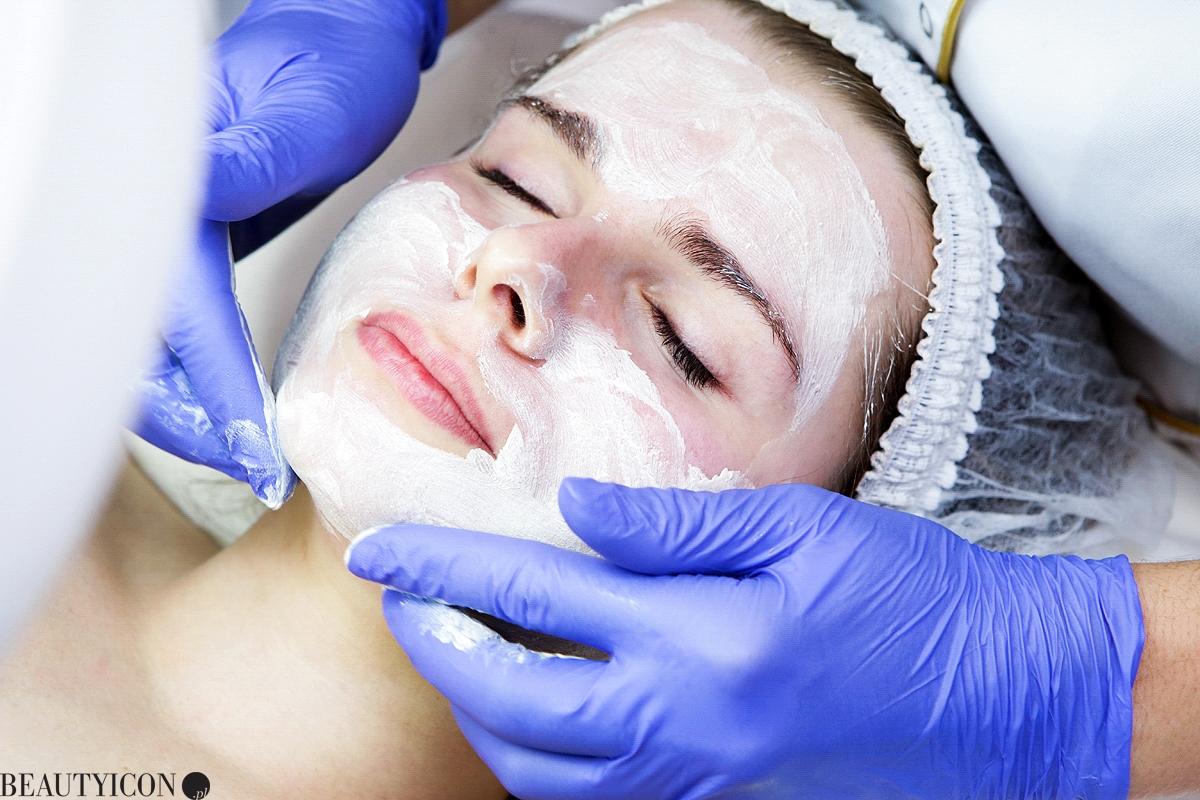 Zabieg Affinity, blizny, przebarwienia, trądzik, zabieg kosmetyczny, medycyna estetyczna