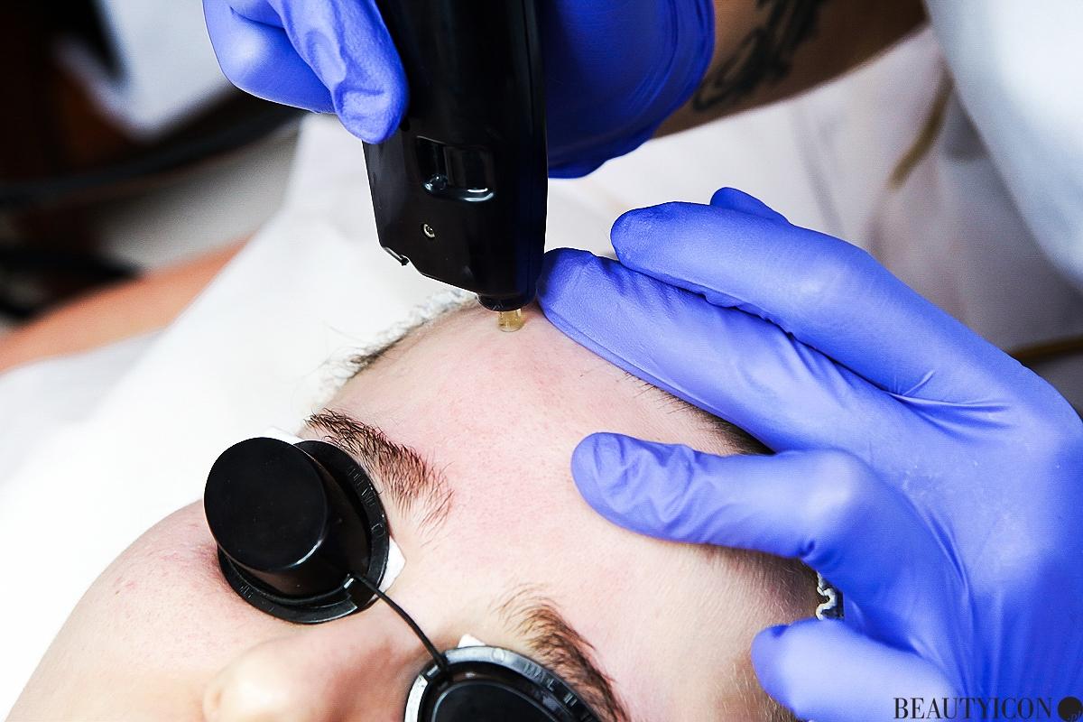 Zabieg Affinity, blizny, przebarwienia, trądzik, zabieg kosmetyczny, medycyna estetyczna, odmładzanie, regeneracja skóry