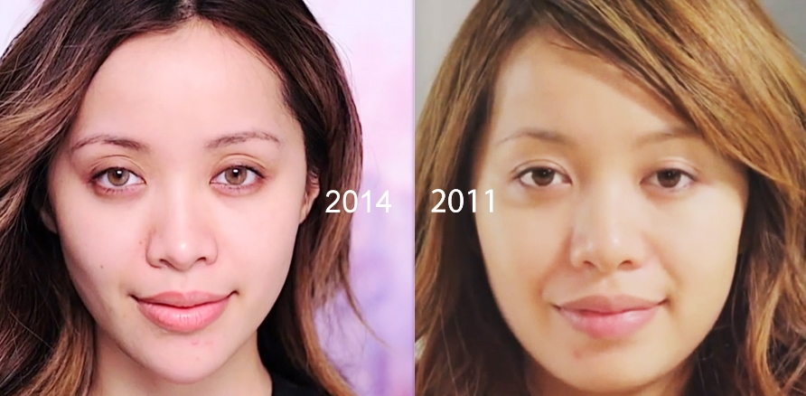 Botox efekty