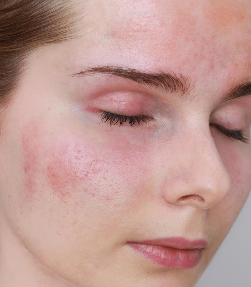 Cera wrażliwa, łojotokowe zapalenie skóry
