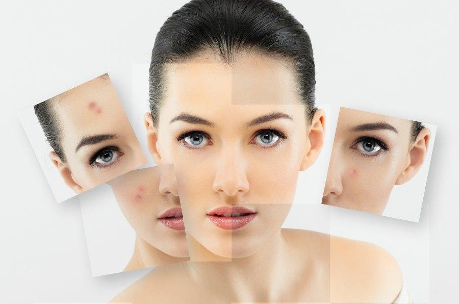 acne_skin_celebrities